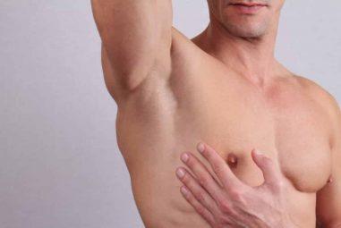 Ginecomastia: ¿por qué se operan los hombres del pecho?
